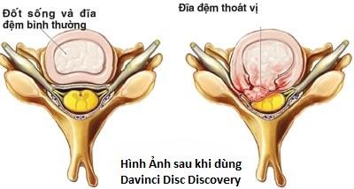 Hình ảnh đối chứng trước và sau khi sử dụng Davince