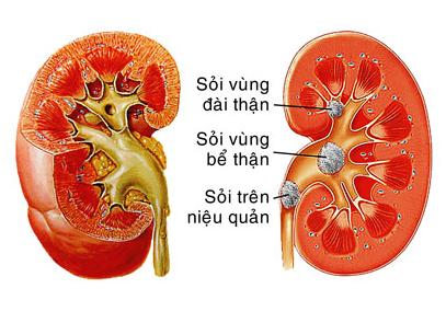 Chanca piedra – thuốc trị sỏi thận 90 viên giải quyết các vấn đề sỏi thận và mật, cũng như các vấn đề khác liên quan đến tiết niệu