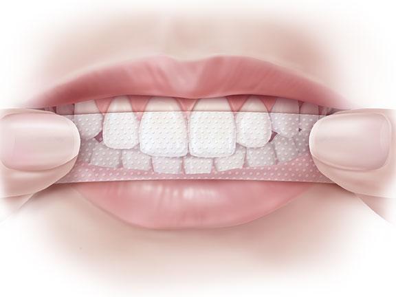 Crest 3D white Advanced Vivid 25x mang lại cho bạn hàm răng trắng, không hề đau đớn