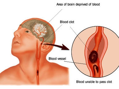 Tai biến mạch máu não là một căn bệnh rất nguy hiểm