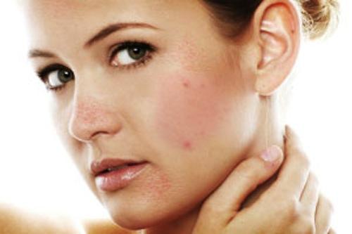 Da mặt mụn đang làm mất đi nét đẹp của phái đẹp