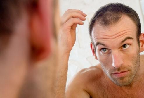 Rụng tóc, hói đầu ảnh hưởng đến hình ảnh của nam giới