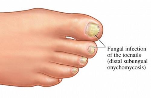 Tác dụng của dung dịch chống nấm móng fungi nail