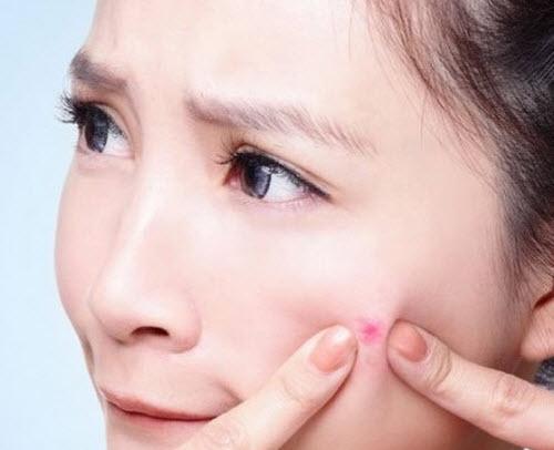 Công dụng của kem trị mụn shiseido pimplit