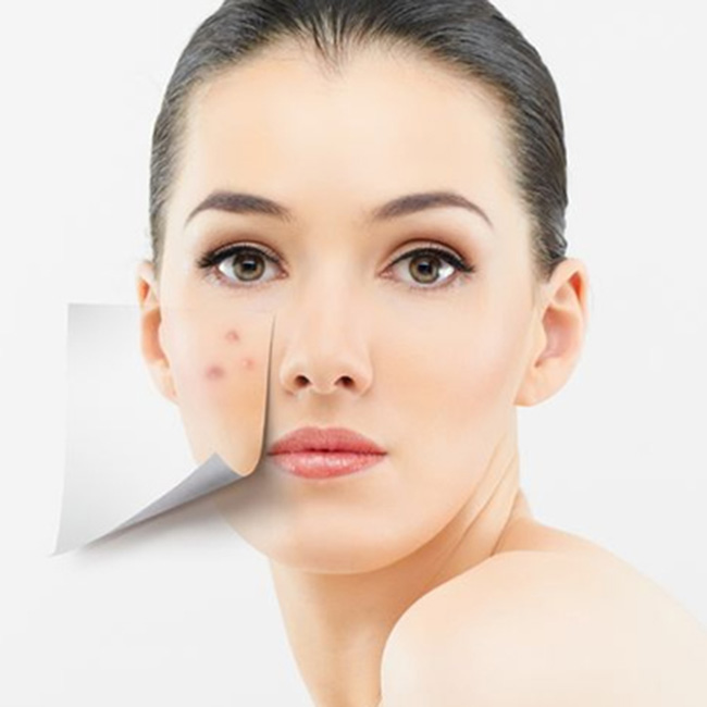 Công dụng của white doctors acne pro