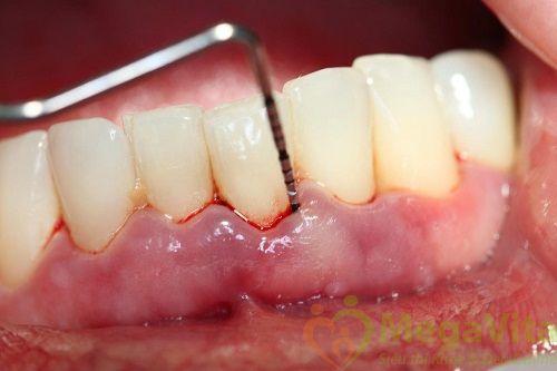 Có nên lấy cao răng khi đang mang thai không?