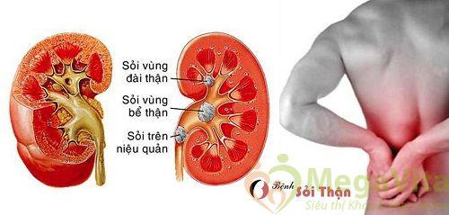 Điều trị sỏi thận bằng bài thuốc dân gian trái thơm