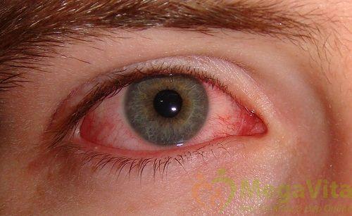 Nguyên nhân triệu chứng bệnh mắt hột