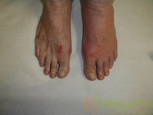 Các triệu chứng bệnh gout
