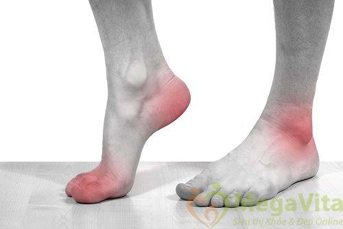 Các triệu chứng bệnh gout và cách điều trị