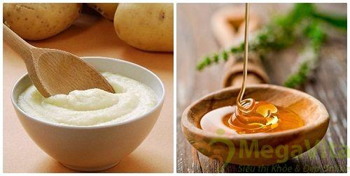 Cách làm mặt nạ khoai tây sữa chua mật ong