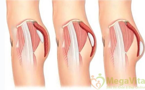Chức năng thành phần thuốc mở mông major curves