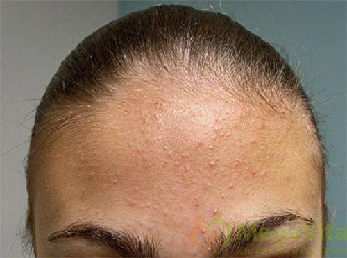 Cách làm mặt nạ từ bột yến mạch trắng da trị mụn
