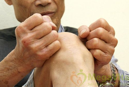 Các bệnh xương khớp thường gặp khi về già