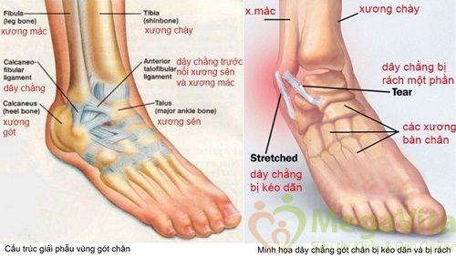 Triệu chứng nhận biết viêm khớp cổ chân