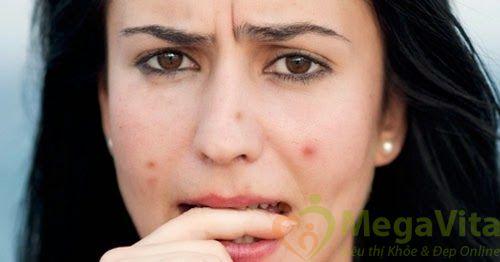 Cách trị vết thâm mụn bằng vitamin e hiệu quả