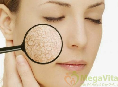 Cách dưỡng ẩm cho da mặt khô vào mùa đông hiệu quả