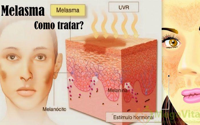 Kem dưỡng da nào tốt theo khảo sát người tiêu dùng thì các sản phẩm dưỡng trắng da phải đáp ứng những tiêu chí sau