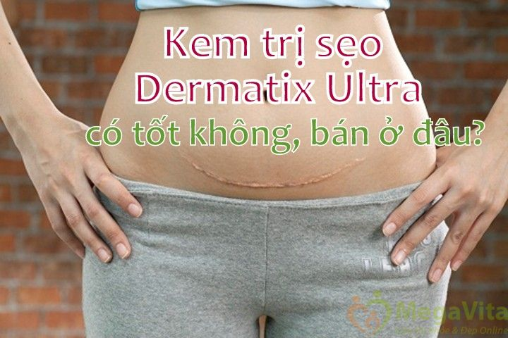 Kem trị sẹo dermatix ultra có tốt không, bán ở đâu?