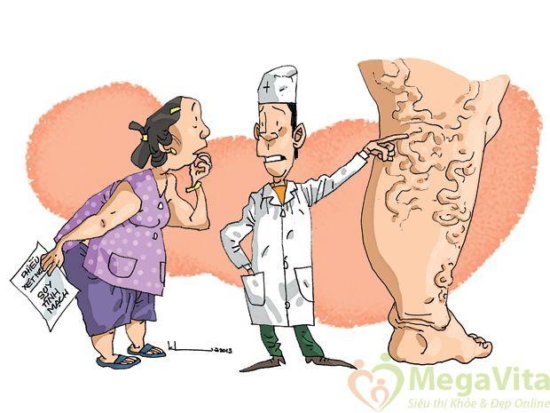 Các loại thuốc nam điều trị bệnh giãn tĩnh mạch chân