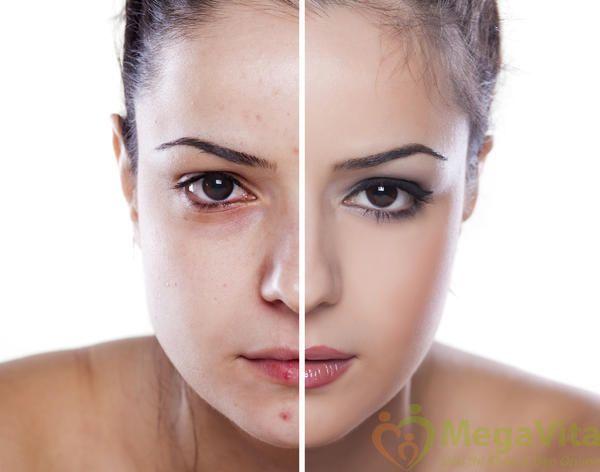 Kem trị sẹo và mờ vết thâm acnes có tốt không, giá bao nhiêu?