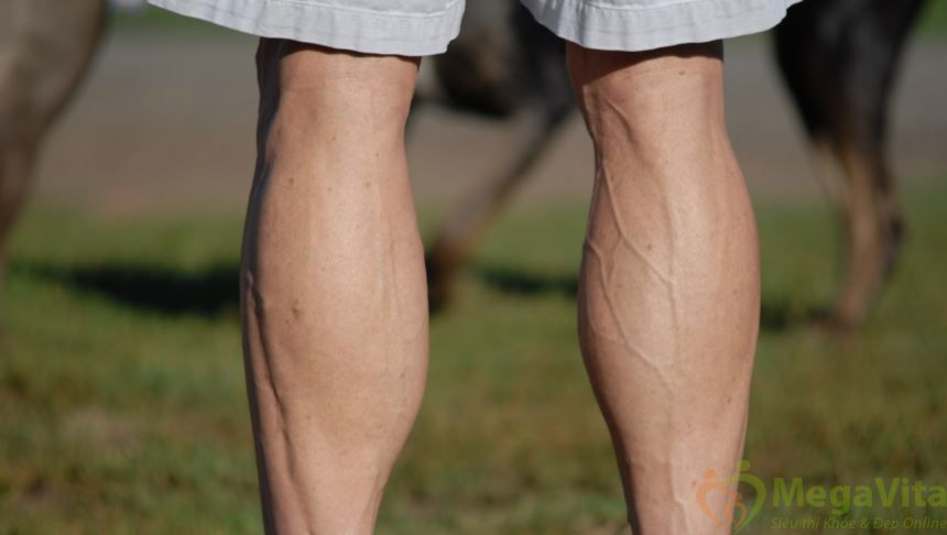 Nguyên nhân giãn tĩnh mạch chân và cách phòng ngừa