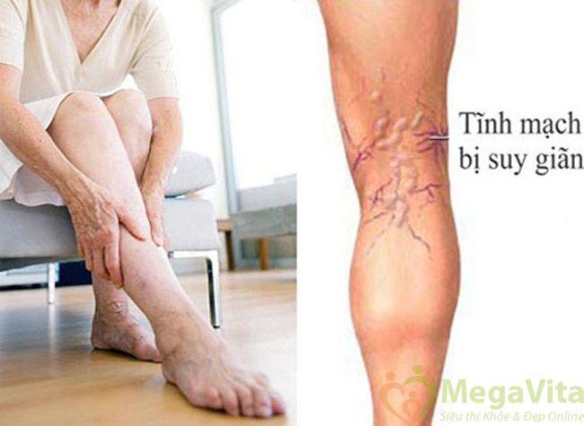 Suy giãn tĩnh mạch chân là một bệnh lý mãn tính?
