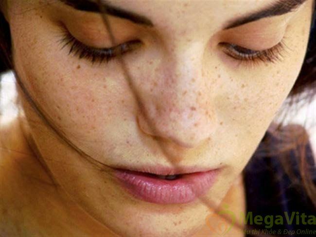 Sạm da khi mang thai nên uống thuốc gì?