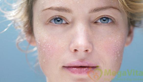 Làm sao để tìm kiếm được một sản phẩm làm sạch nhẹ dịu và thực sự an toàn cho làn da nhạy cảm, giúp da khỏe mạnh hơn và hỗ trợ phục hồi cơ chế tự bảo vệ của da