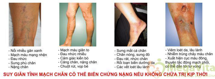 Viên uống hỗ trợ điều trị bệnh suy giãn tĩnh mạch chân nature's way leg veins support blend của mỹ hộp 60 viên
